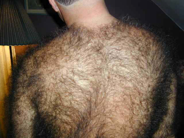 ipertricosi maschile